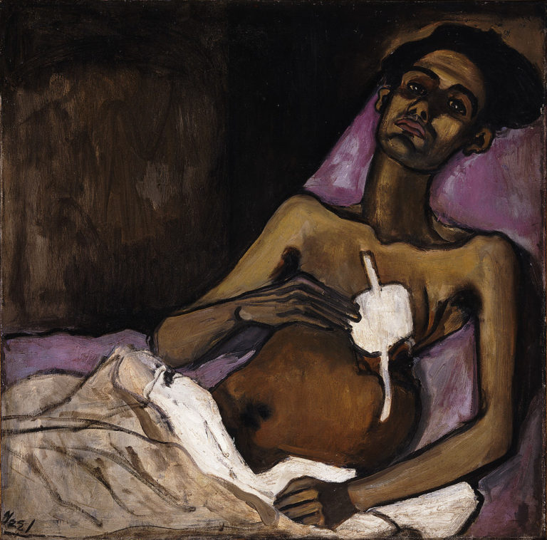 A sick man with medium skin tone lies on a bed with purple bedding and stares out with a dignified expression. The left side of his chest is misshapen and covered with a white bandage. Thick outlines define his body and highlights on his arms and face accentuate his frail frame.